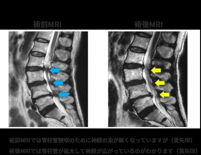 腰部脊柱管狭窄症に対する内視鏡下手術