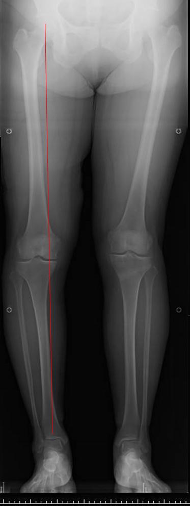 術前の荷重線は膝の内側を通る